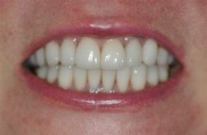 Chameleon® Crowns and Veneers