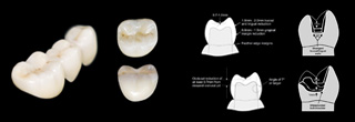Chameleon® Fortress© Zi All-Zirconia Crowns, Bridges, Inlays and Onlays